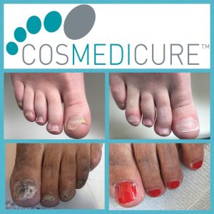 Medical Nail Reconstruction